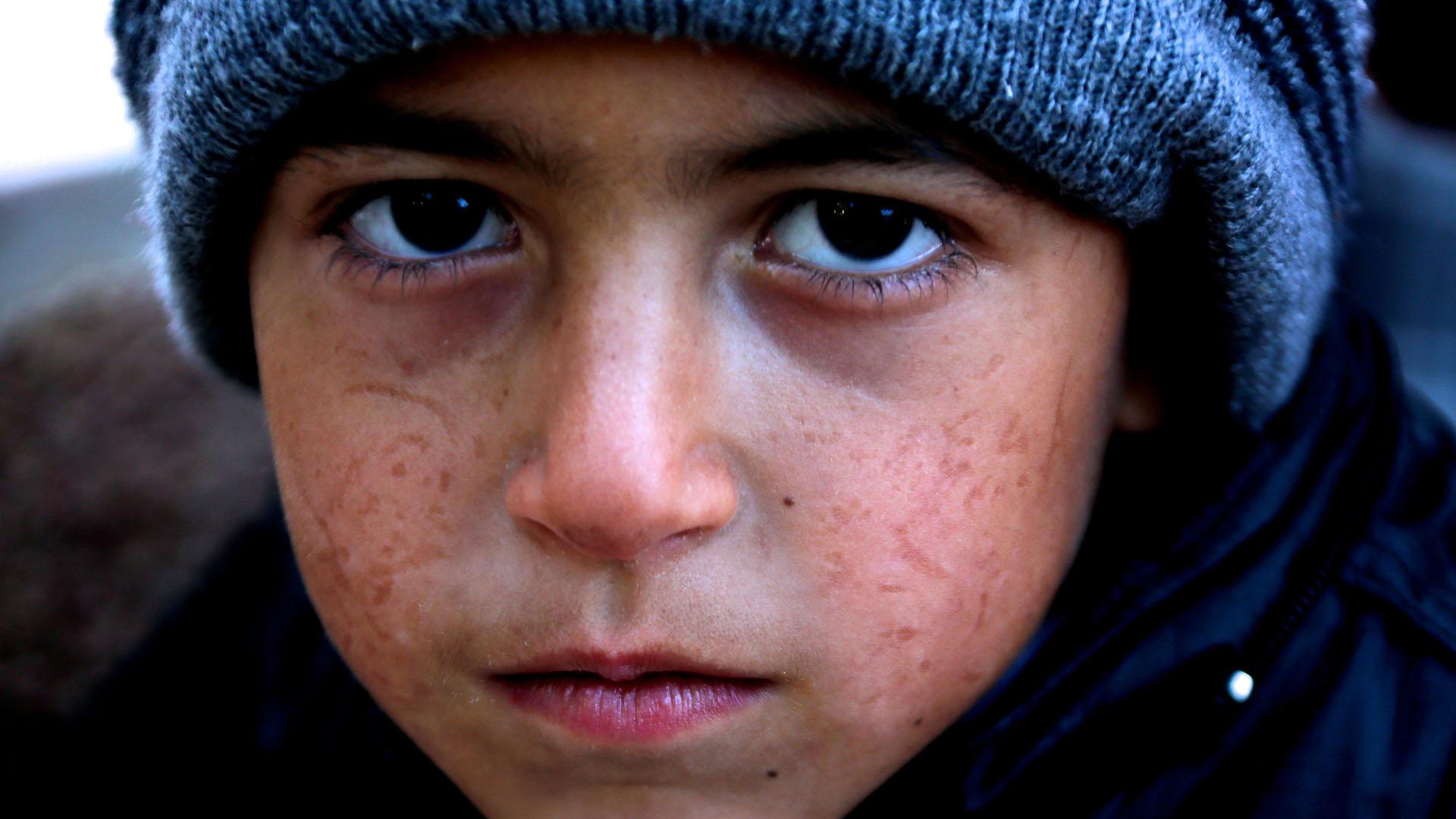 """صورة الأطفال """"الكراشون"""" في سوريا؟  من هم وما هي أعمالهم؟"""