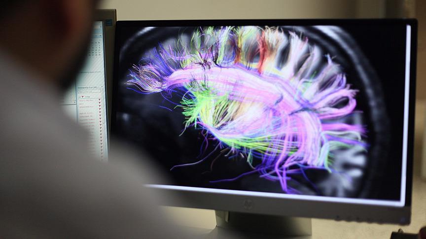 صورة الدماغ يأكل نفسه بسبب قلة النوم(دراسة)