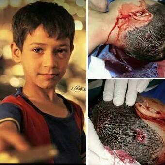 """صورة شبيح يقتل طفلاً بالرصاص لعرضه عليه شراء """"علكة"""""""