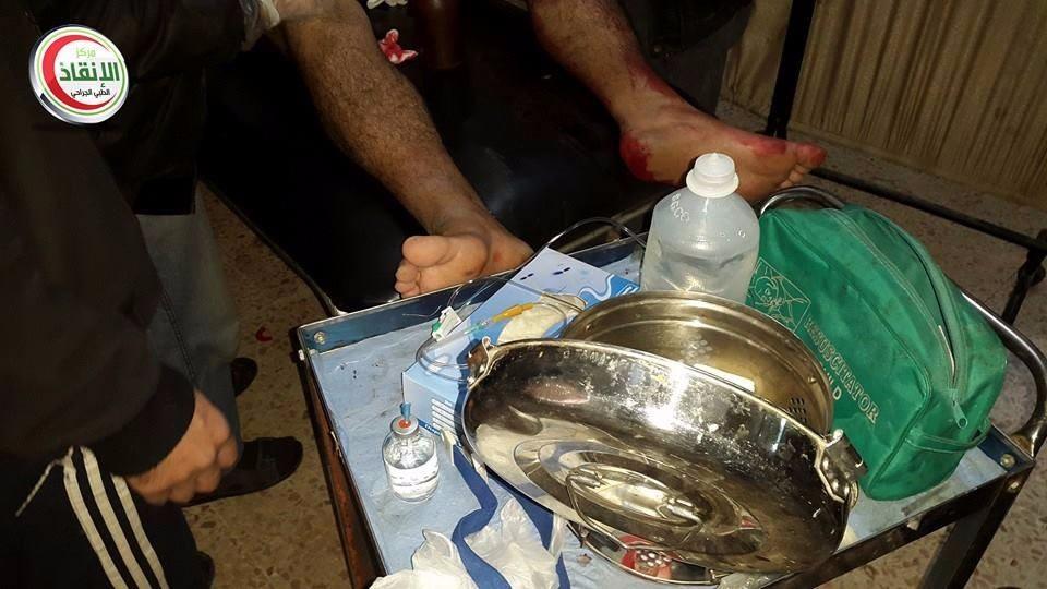 صورة مرضى مخيم اليرموك بين مطرقة الأسد وسندان داعش