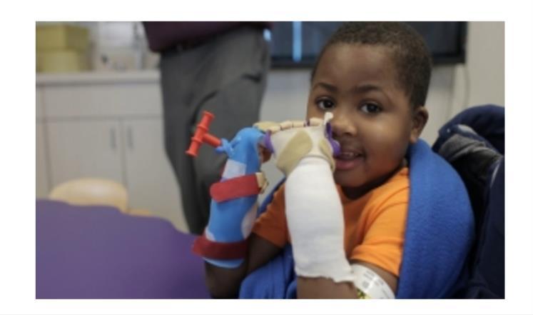 صورة نجاح أول عملية زراعة يدين لطفل