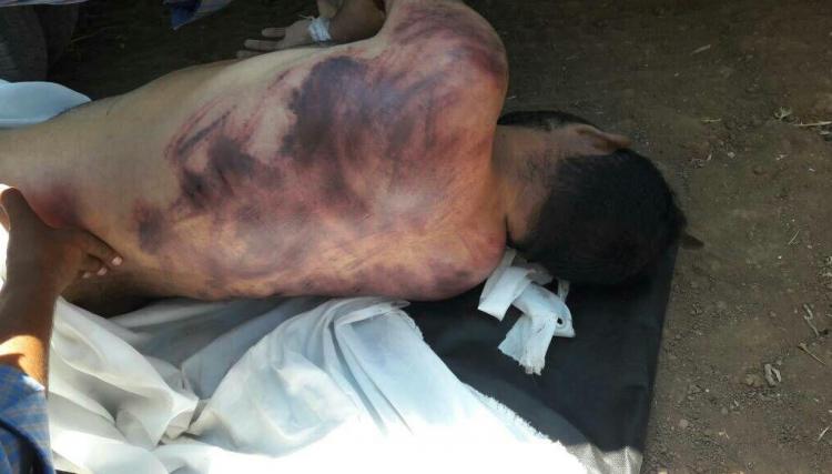 صورة اتهموه بالانتماء لداعش لسرقة أمواله..عناصر من أحرار الشام يعذبون نازحاً حتى الموت