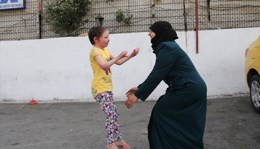 """صورة إسطنبول جمعتها بأمها..دموع فرح """"هبة"""" أطفأت لهيب حروق وجهها"""