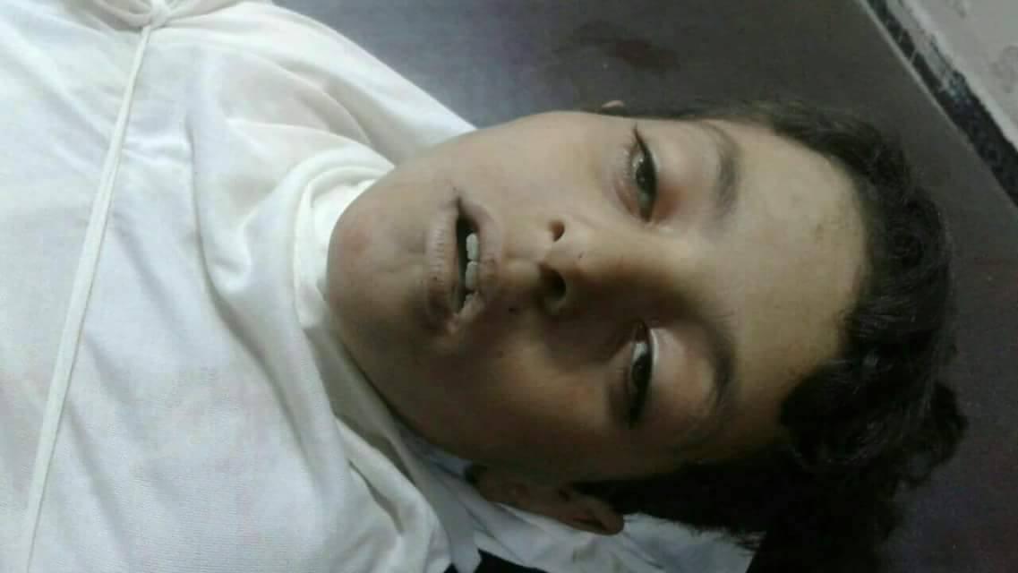 صورة قناص الأسد يقتل طفلا والحزن يغتال أبيه