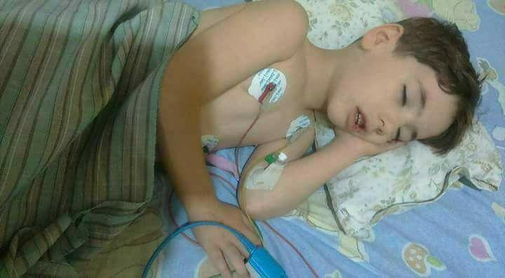 صورة أسامة..طفل قتله حصار الأسد وتخاذل المنظمات