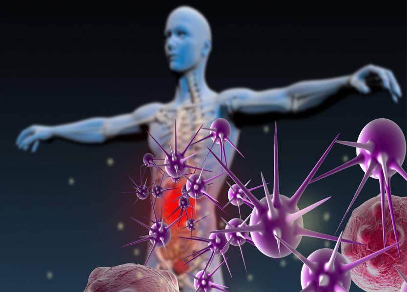 صورة العلاج المناعي للسرطان بالمراحل المبكرة يثبت فاعلية