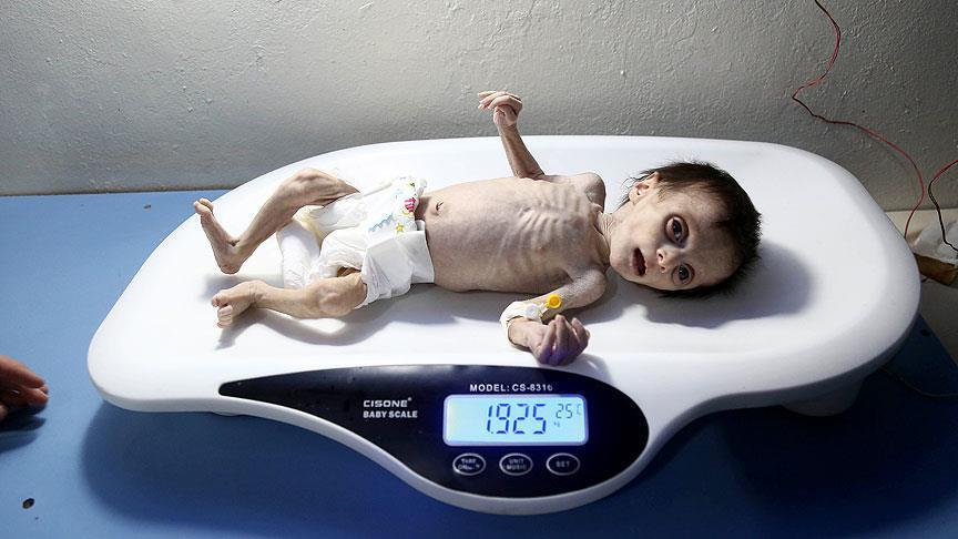صورة وفاة طفلين جراء سوء التغذية بغوطة دمشق المحاصرة