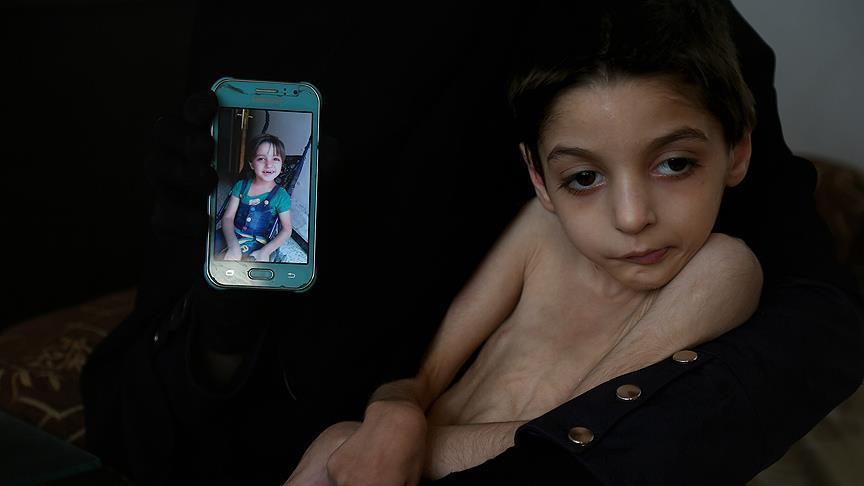 صورة رهف..طفلة من غوطة دمشق..ساعات تفصلها عن الموت
