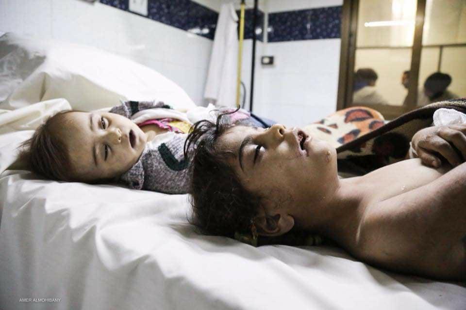 """صورة مادة تشبه """"ملح الطعام"""" تقتل 5 مدنيين بغوطة دمشق"""