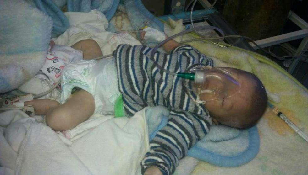 صورة وفاة 227 رضيع في الغوطة الشرقية منذ بداية العام