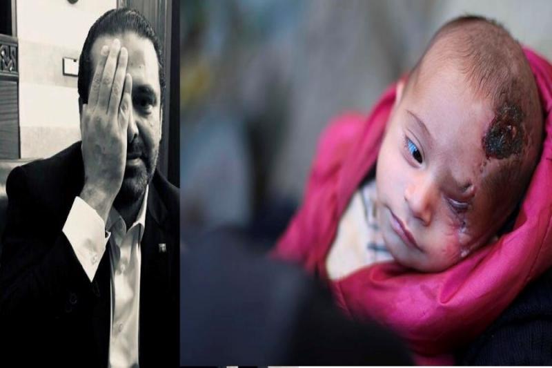 """صورة الحريري يتضامن مع الطفل """"كريم"""""""