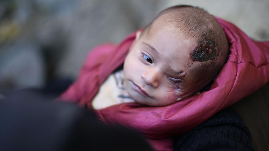 """صورة هكذا تم إنقاذ """"كريم"""" الذي اغتال الأسد عينه وأمه"""