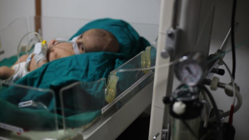 صورة يونيسف: وفاة 5 أطفال بغوطة دمشق جراء الحصار