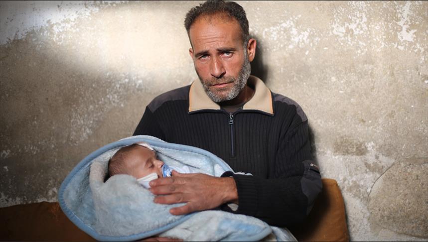 """صورة الطفل """"كريم"""" مهدد بفقدان عينه الثانية"""
