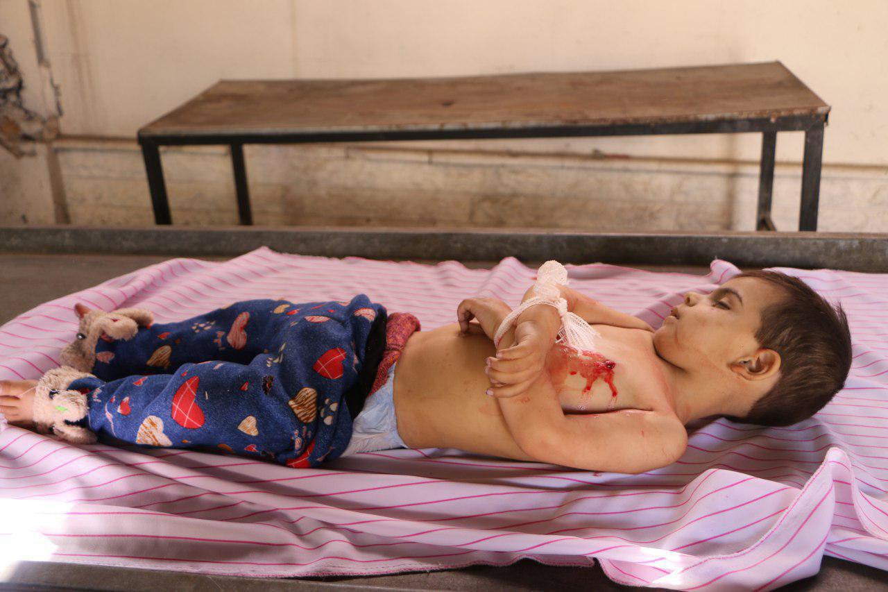 صورة نظام الأسد قتل 79 طفلا بغوطة دمشق خلال شهرين