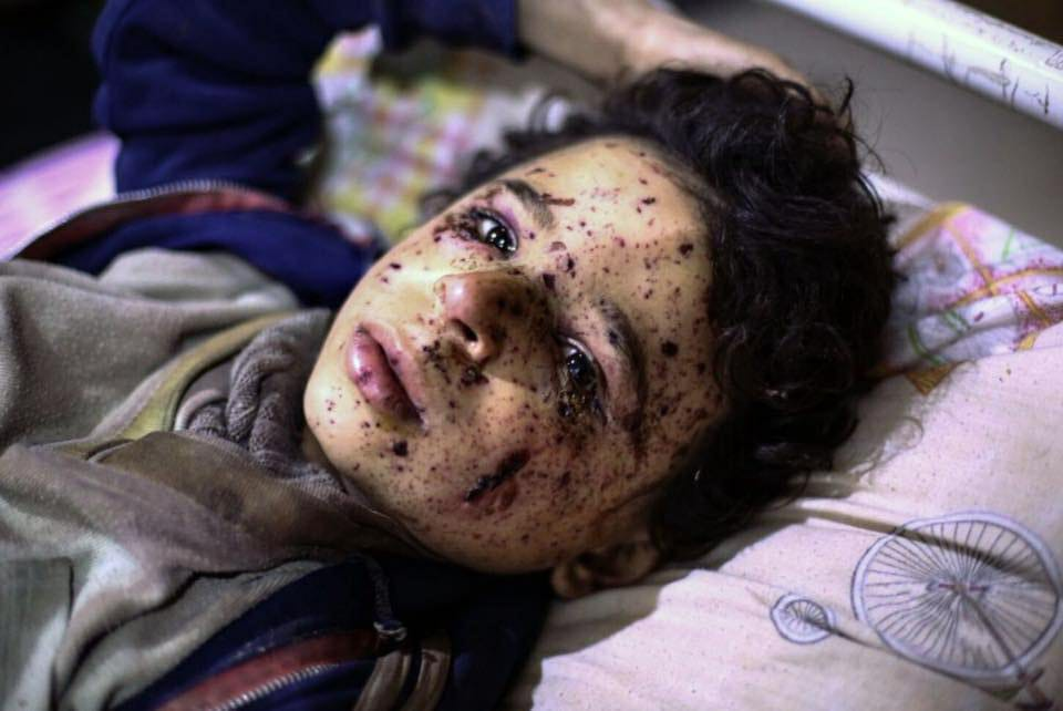 صورة لماذا صمت العالم على مذابح الغوطة؟