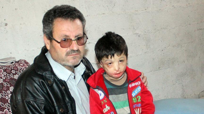 صورة محمود..طفل سوري أحرقته براميل الأسد