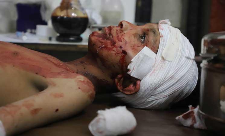 صورة الأمم المتحدة: ألف حالة طبية من الغوطة بحاجة لإجلاء عاجل