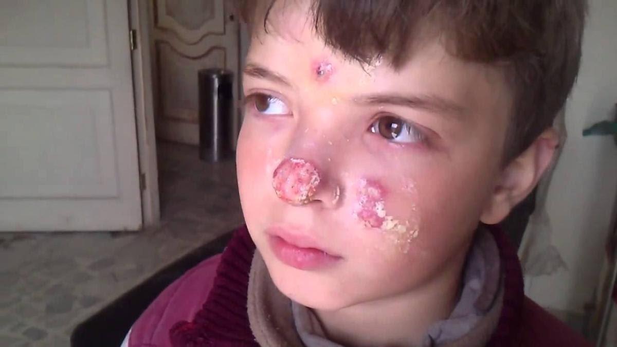 """صورة 35 ألف مصاب بـ""""اللشمانيا"""" بـ4 محافظات سورية"""