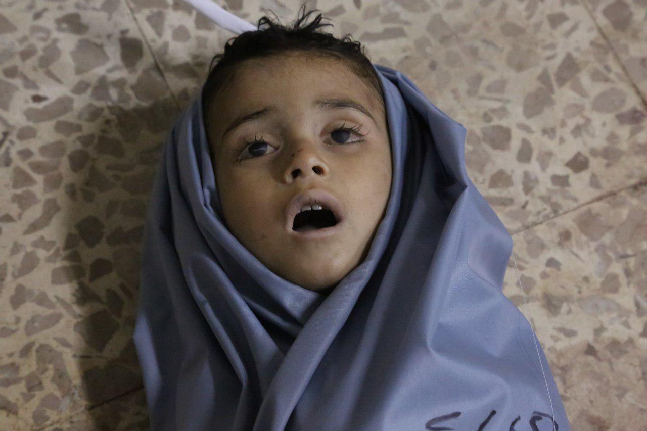 صورة يونيسيف..الحرب أطفال سوريا بلا رحمة