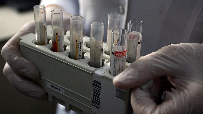 صورة اختبار جديد يكشف عن تلف الكبد بأقل من ساعة