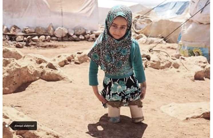 صورة طفلة تستخدم أواني فارغة كأطراف صناعية