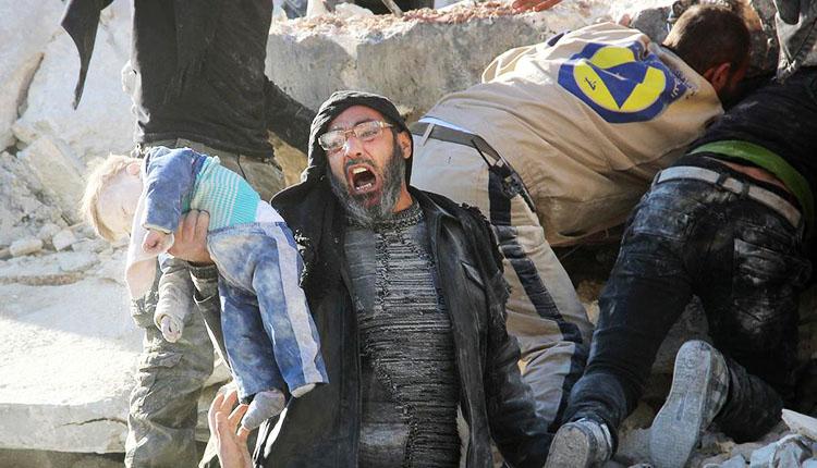 صورة منذ بداية المونديال..روسيا قتلت 71 مدنياً بينهم 20 طفلاً