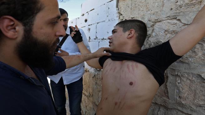 صورة أساليب التعذيب في سجون الأسد..شهادات مروعة
