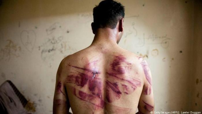 صورة تفاصيل مرعبة يرويها معتقل في سجون الأسد