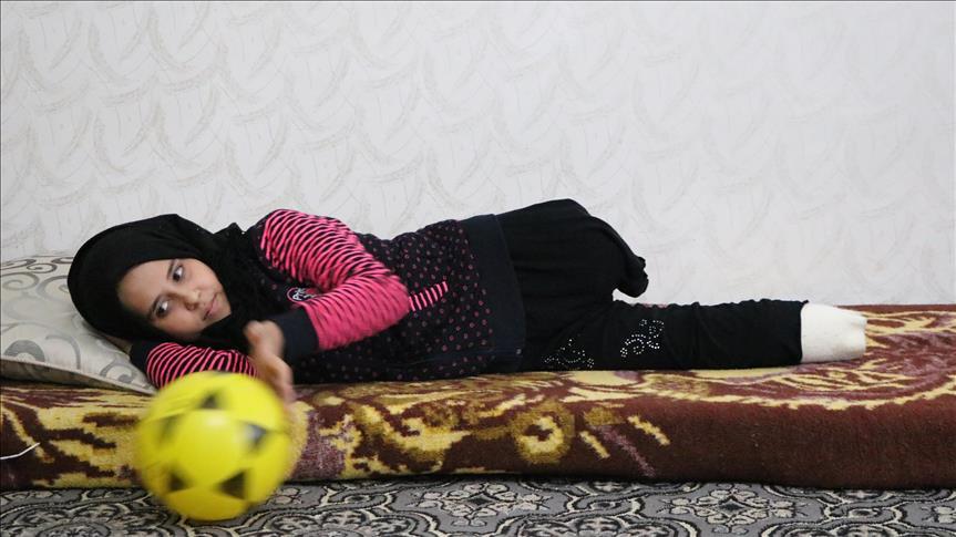 صورة مريم.. طفلة سوريا تنتظر قدمين إصطناعيين