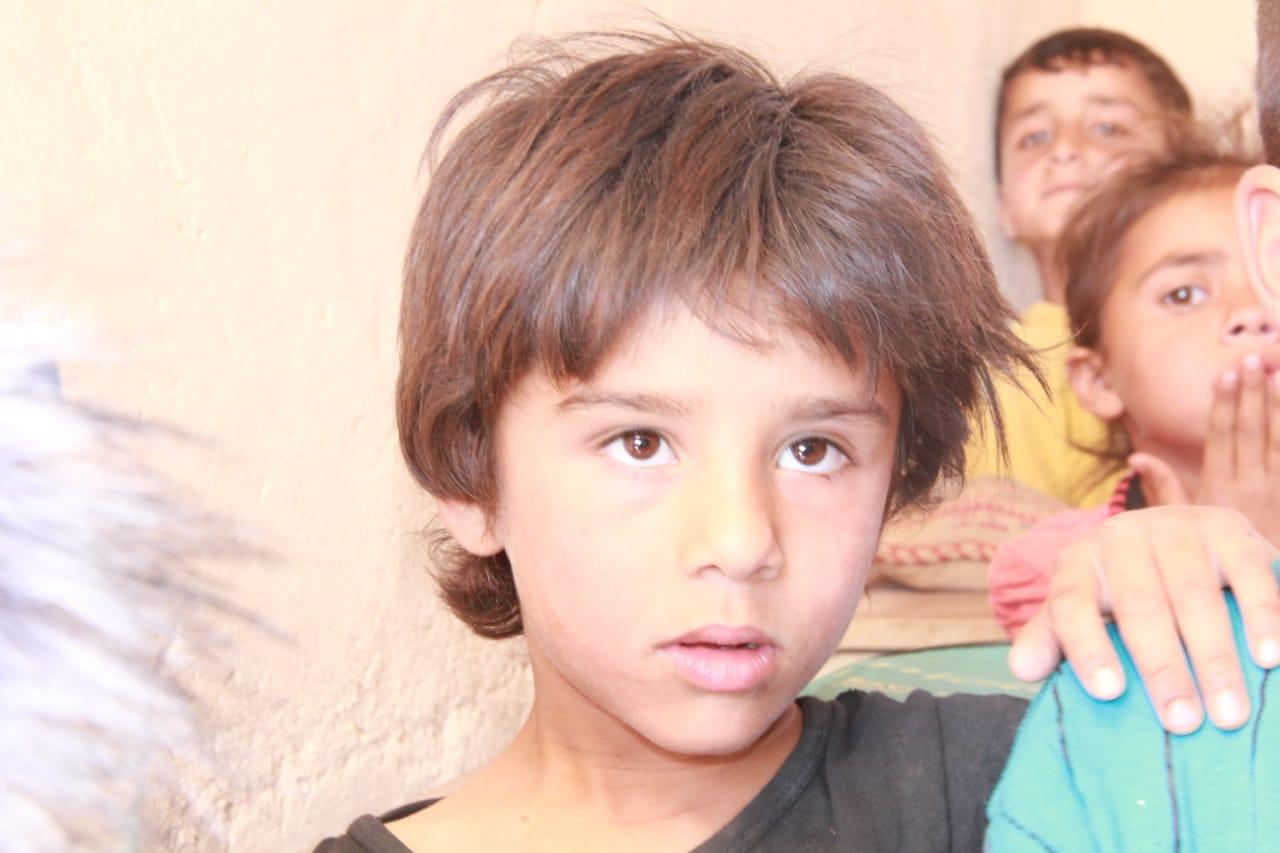 صورة وفاة طفلين في مخيم الركبان بسبب الحصار